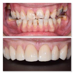 Dental veneers infinity dental clinic