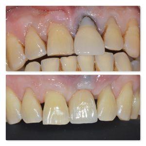 UL1 restored dental implant straumann