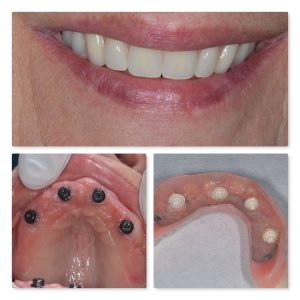 Implant retained denture leeds Infinity Dental Clinic