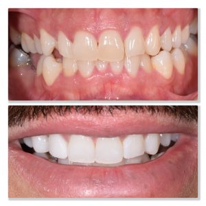 tooth whitening cosmetic dental treatment