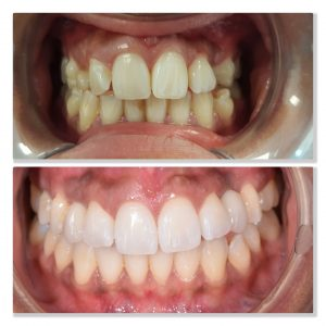 invisalign and whitening