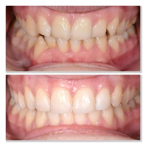 invisalign infinity dental clinic leeds