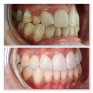 tooth whitening and dental implant