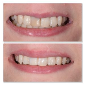 internal tooth whitening infinity dental clinic