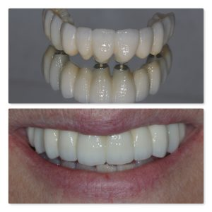 Fixed full arch same day teeth dental implants leeds infinity dental clinic Dr Mohsin Patel