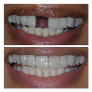 Dental Implant to replace upper central incisor, Leeds Infinity Dental Clinic