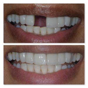 dental implant missing incisor