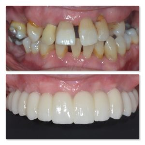 Fixed full arch dental implant to replace missing teeth