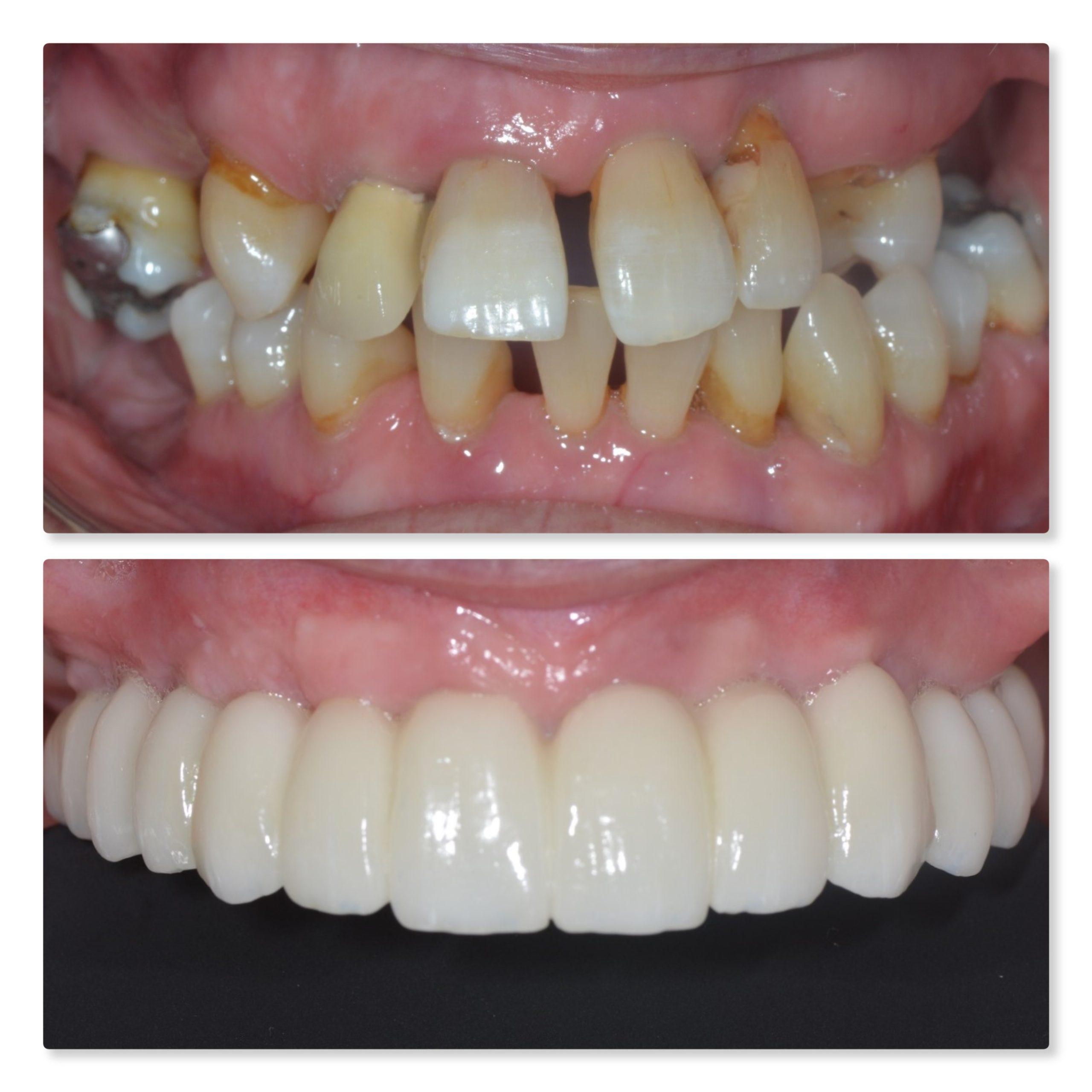 Full Arch Same Day Teeth Dental Implants Leeds Infinity Dental Clinic