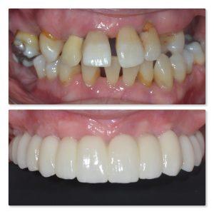 Fixed full arch dental implants