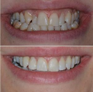 orthodontic treatment infinity dental clinic
