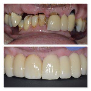 Dental implant Leeds Infinity Dental Clinic