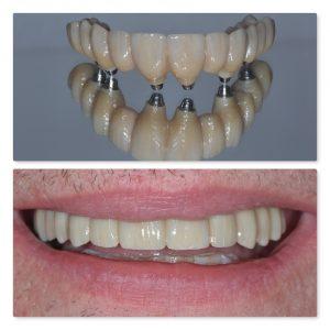 Fixed full arch same day teeth dental implants leeds infinity dental clinic