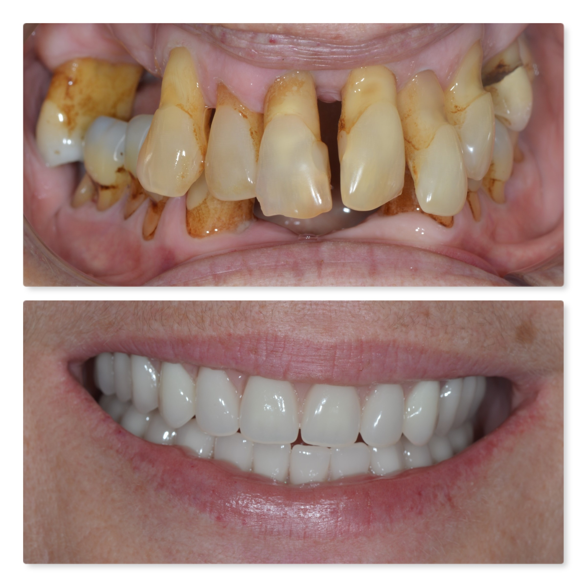 Full arch replacement of loose teeth using dental implants