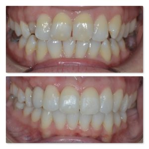Invisalign infinity dental clinic orthodontica