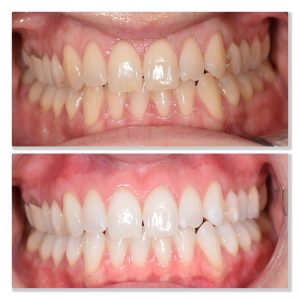 tooth whitening infinity dental clinic