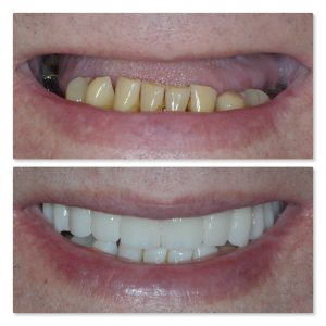 Full mouth tooth replacement