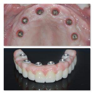 milled zirconia implant teeth infinity dental clinic