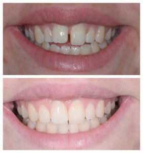 Invisalign open bite treatment