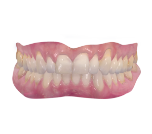 trios digital scan upper and lower teeth infinity dental clinic