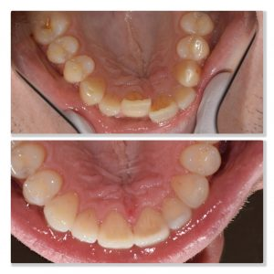orthodontics infinity dental clinic