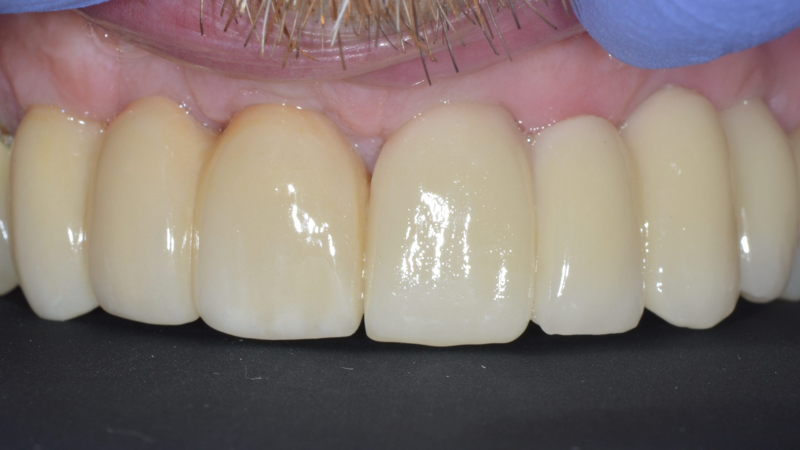 dental implant leeds
