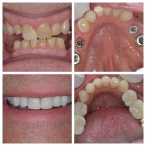 dental implant and composites
