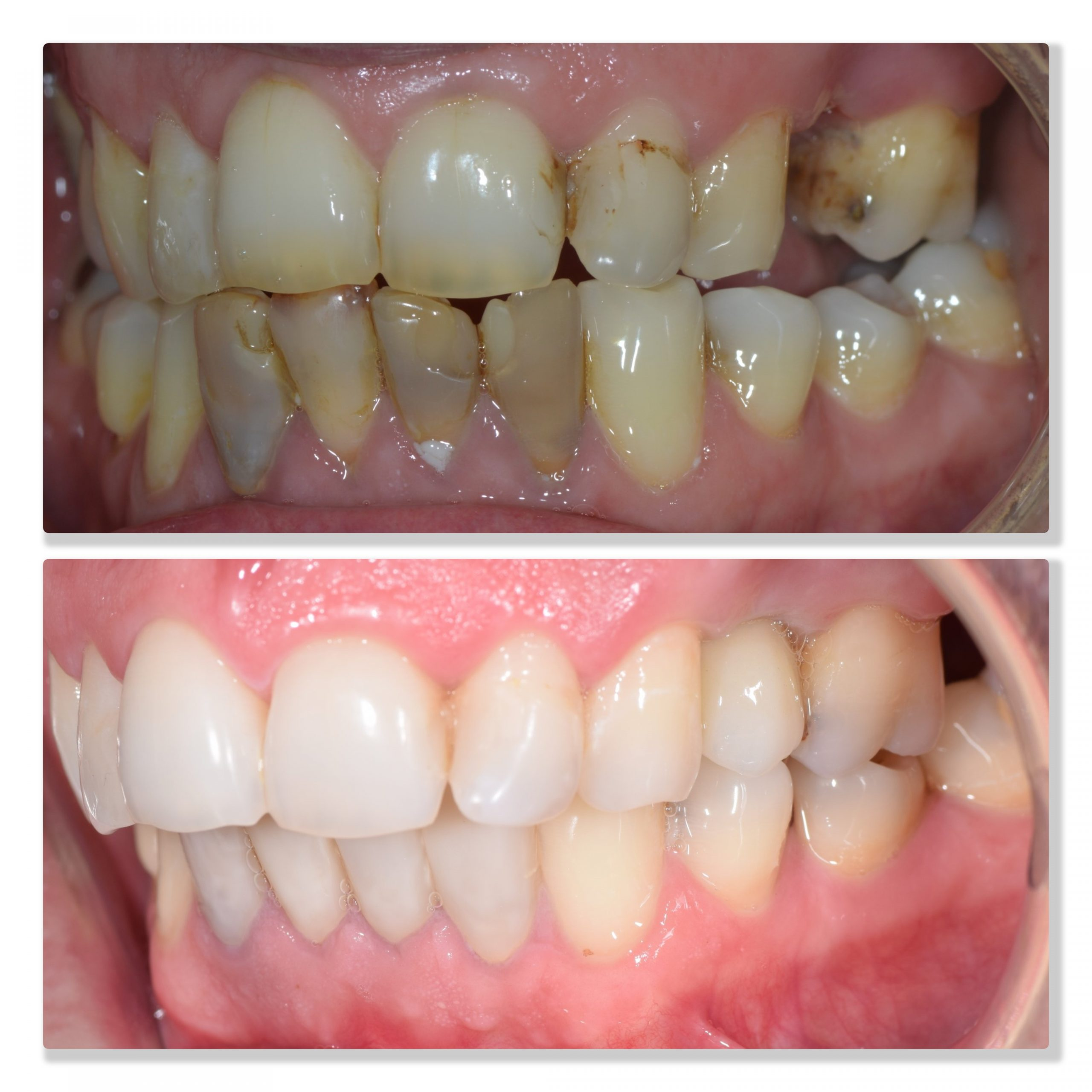 improving dental health infinity dental clinic leeds